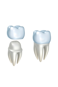 Computer generated dental crown model from Rho Family Dentistry to show an example.