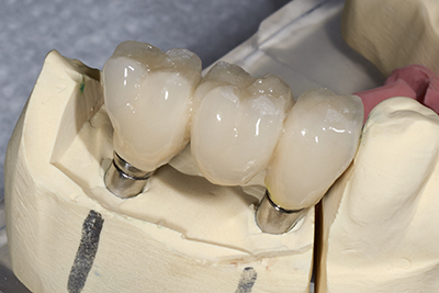 Porcelain fixed bridges done by our dentist at Rho Family Dentistry