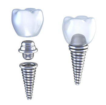 Dental implant computer generated model from Rho Family Dentistry to show an example