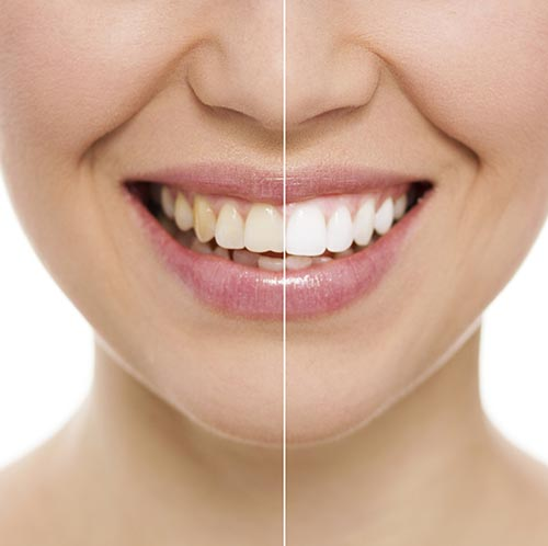 woman smiling showing Teeth Whitening procedure difference at Rho Family Dentistry